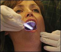 Vizilite - Haas Dental Centre